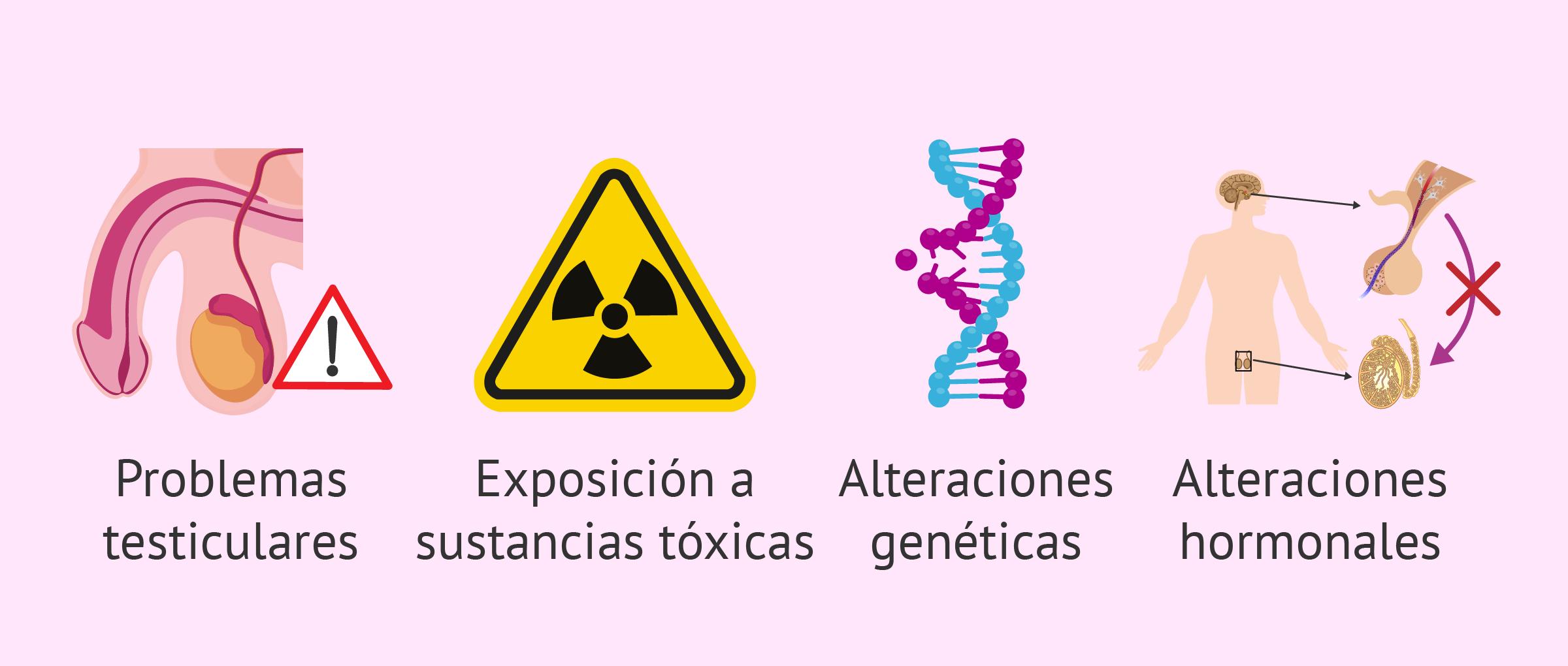 Causas de la azoospermia secretora