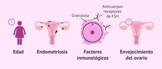 Imagen: Motivos de la baja respuesta de los ovarios a los fármacos