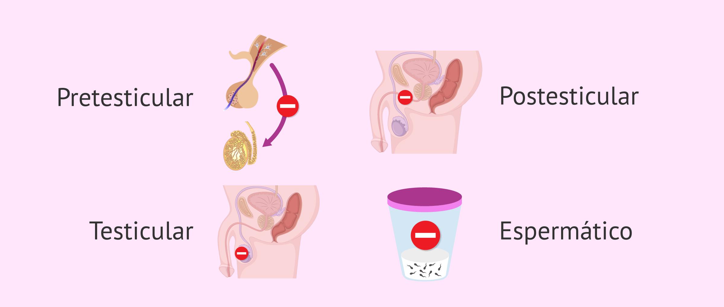 Causas de la infertilidad en el varón