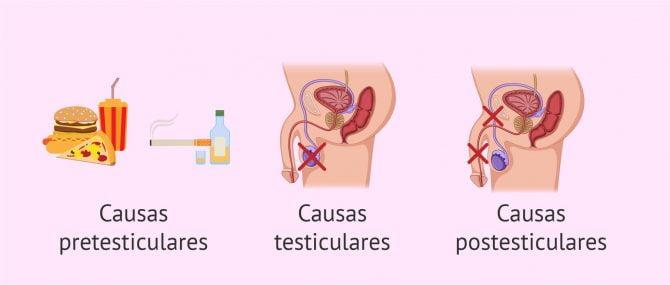 Imagen: Causas de la criptozoospermia