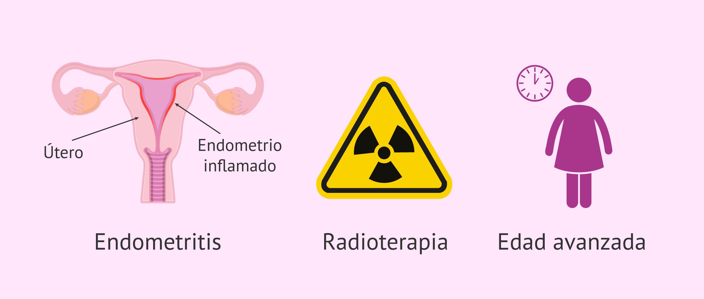 causas-del-endometrio-refractario