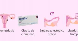 Motivos por los que se produce el embarazo ectópico