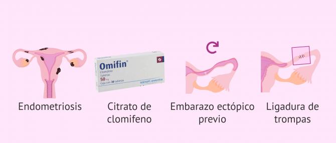 Imagen: Motivos por los que se produce el embarazo ectópico