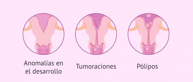 Imagen: Causas de esterilidad por factor cervical