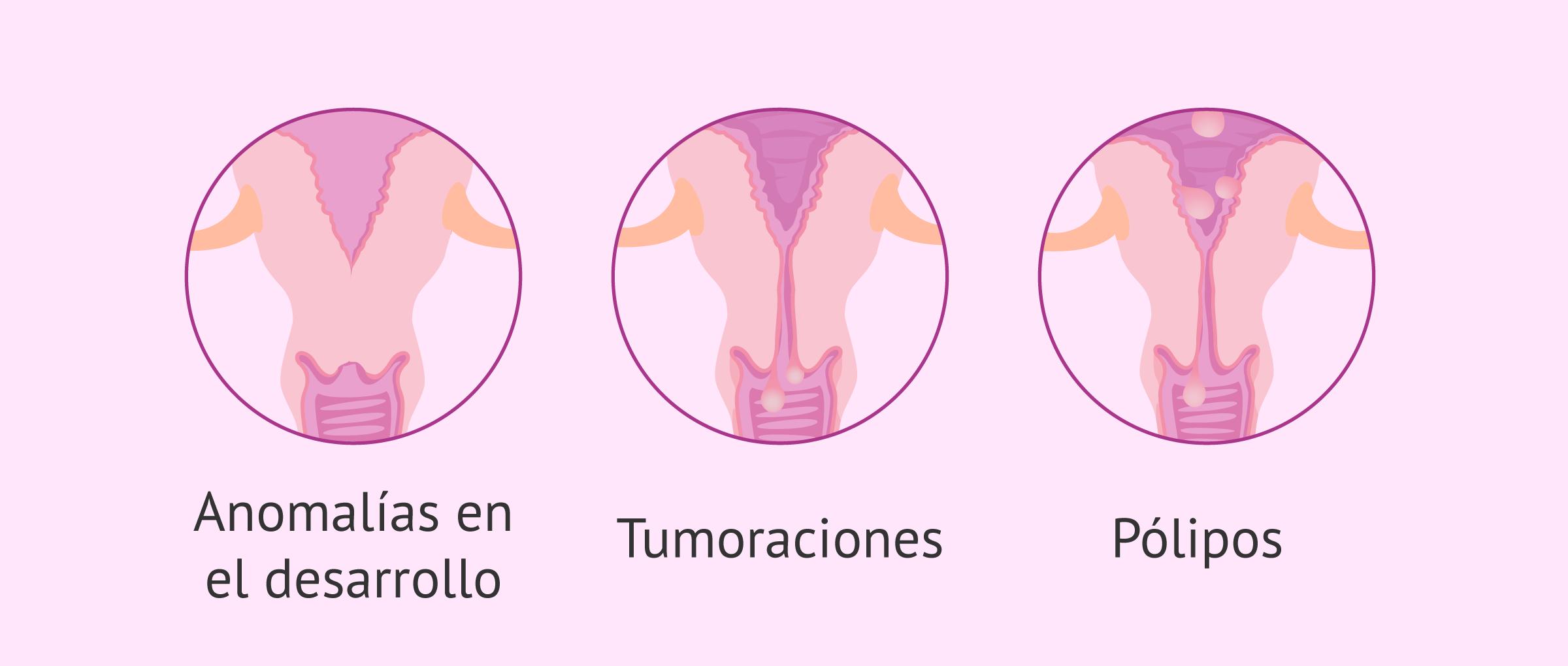 Causas de esterilidad por factor cervical