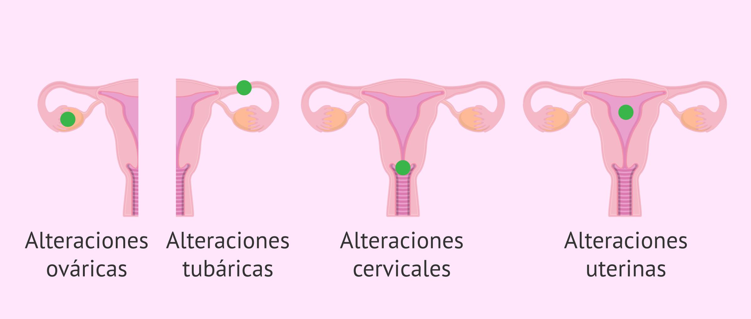 ¿Por qué se produce la infertilidad femenina?