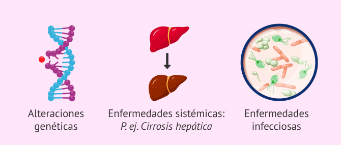 Imagen: Causas hipogonadismo hipergonadotropo