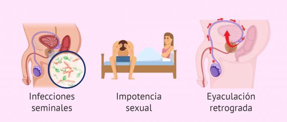 Causas de infertilidad por factor postesticular