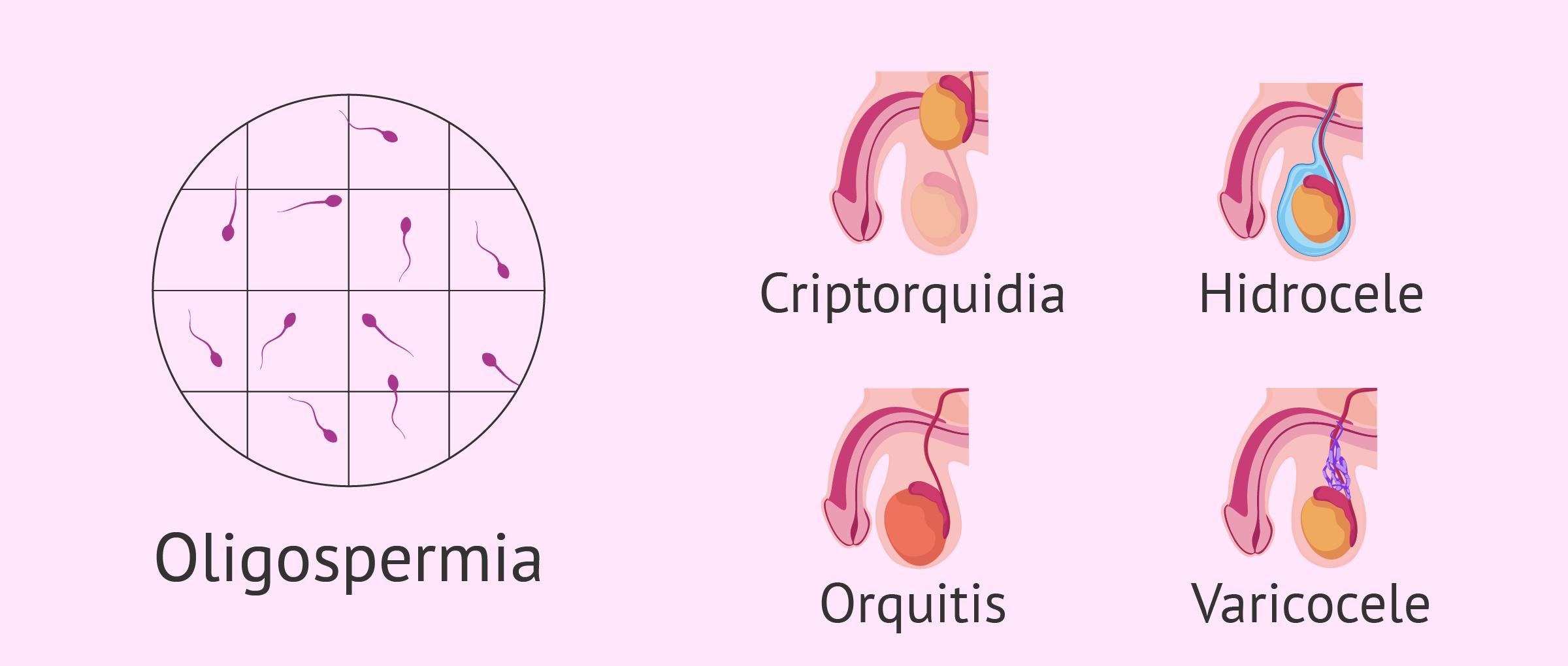Alteraciones asociadas a la oligospermia e infertilidad masculina
