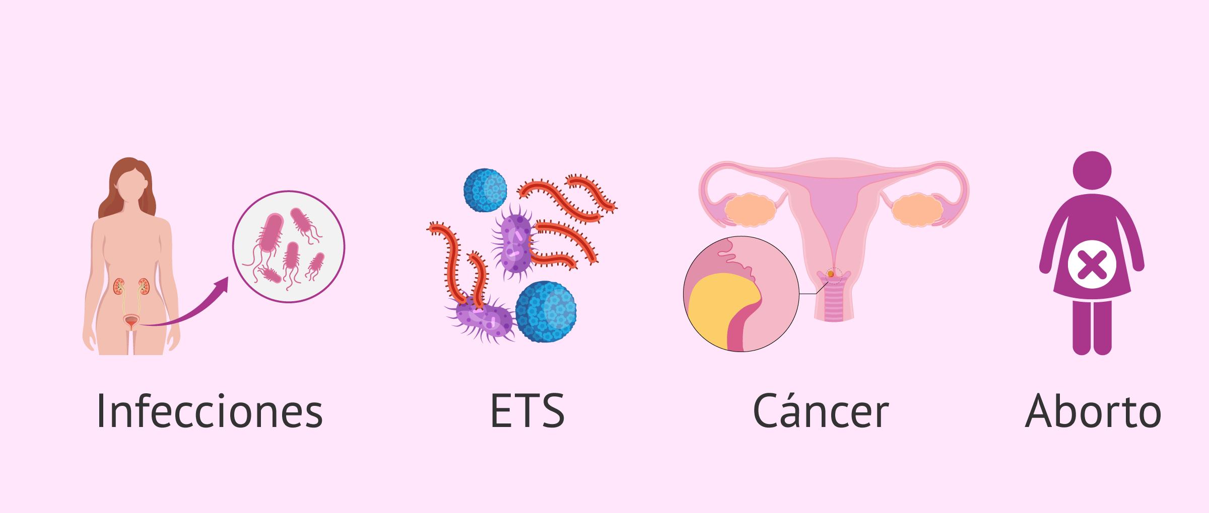 ¿Por qué se produce la ovaritis?
