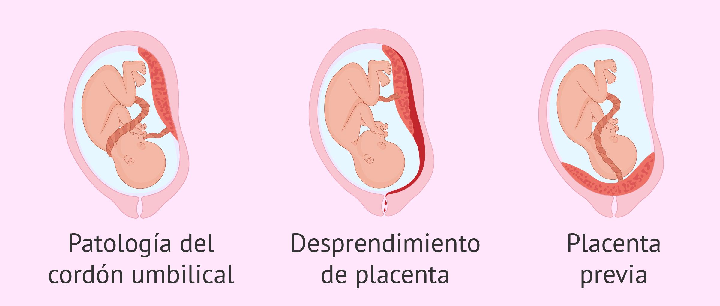 Causas placentarias de muerte fetal