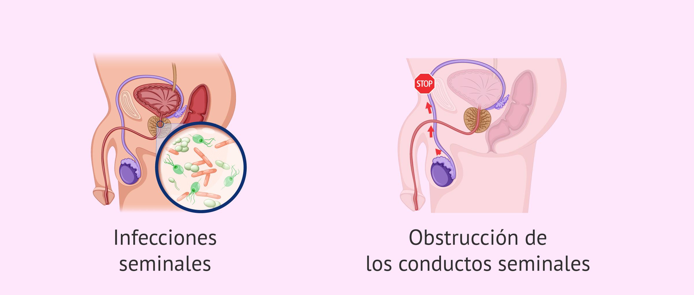 Oligospermia por causas postesticulares