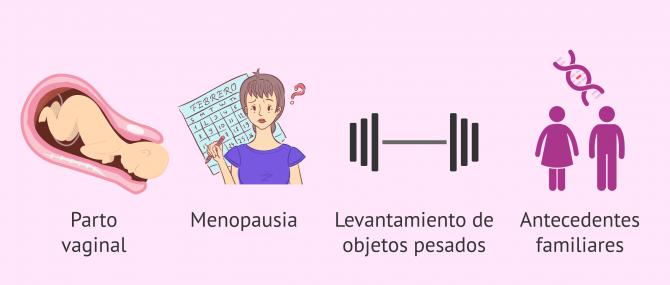 Imagen: Causas del prolapso uterino