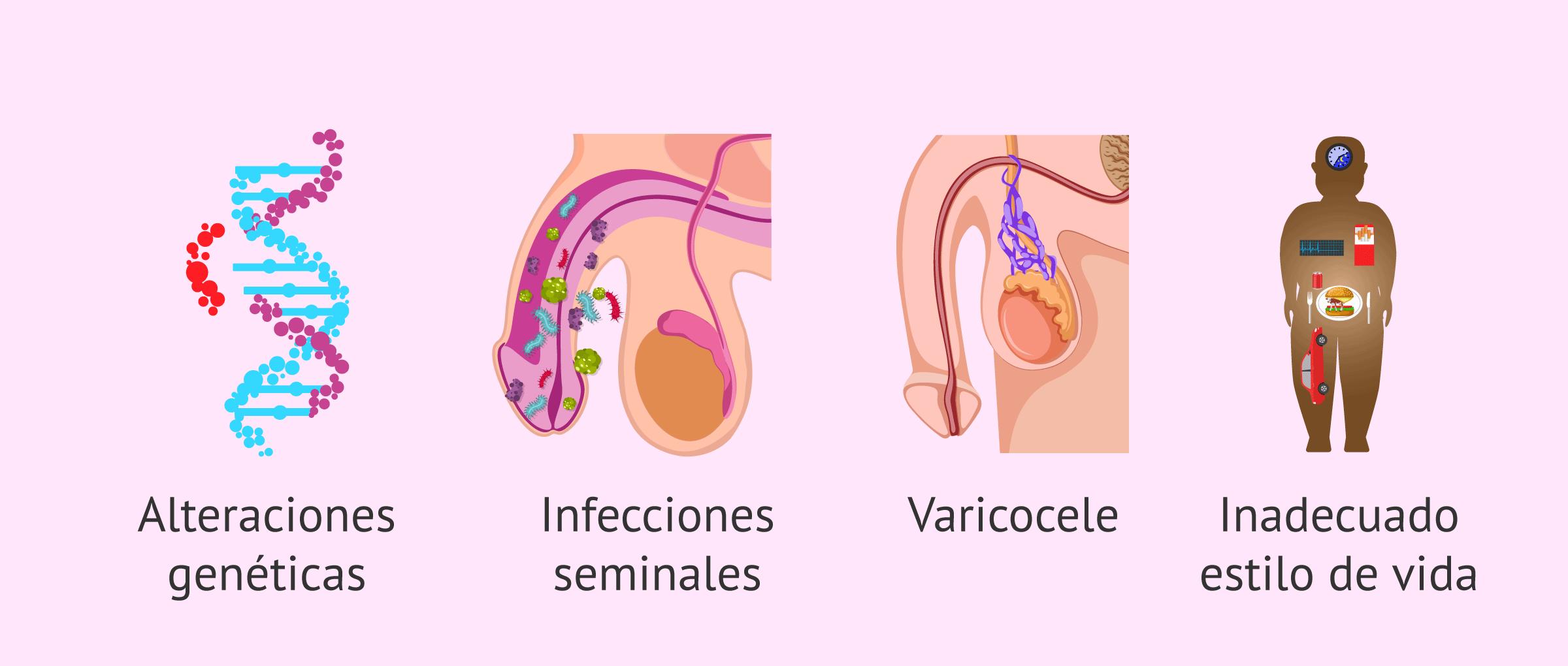 ¿Qué factores provocan teratozoospermia?