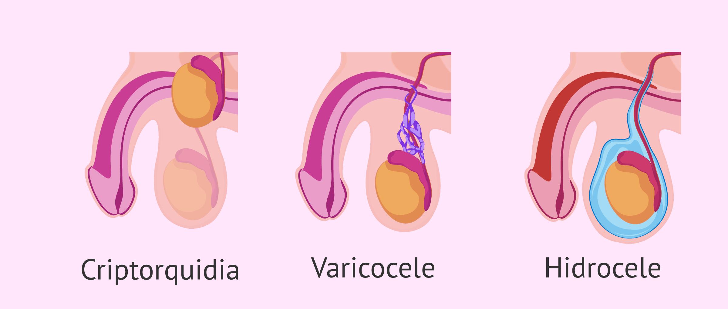 Oligospermia por causas testiculares
