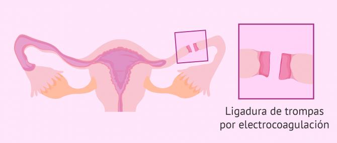 Imagen: Cauterización y ligadura de trompas