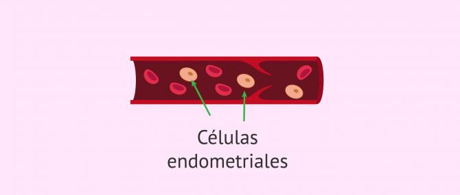 Imagen: Teoría de la diseminación vascular o linfática