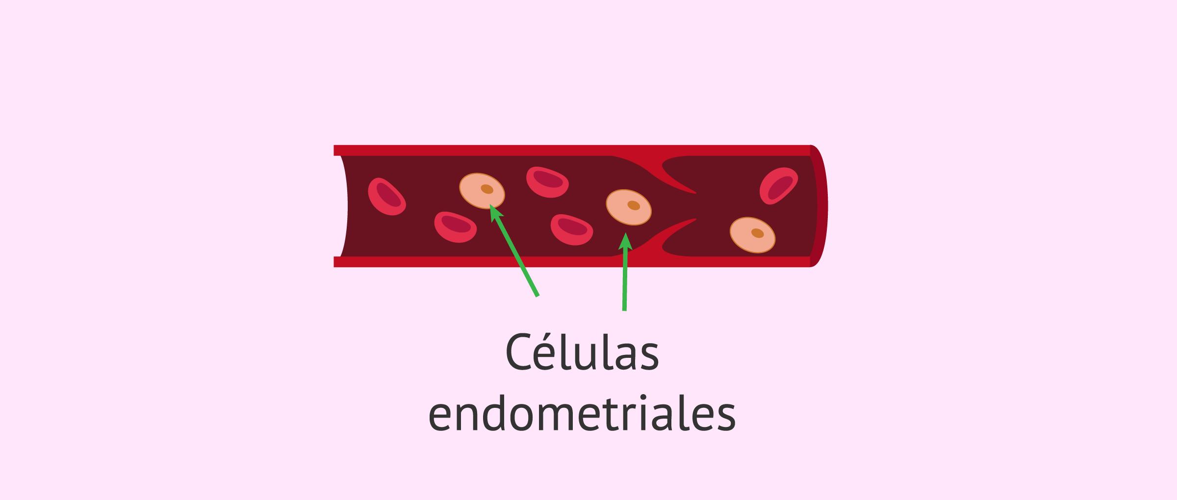 Teoría de la diseminación vascular o linfática