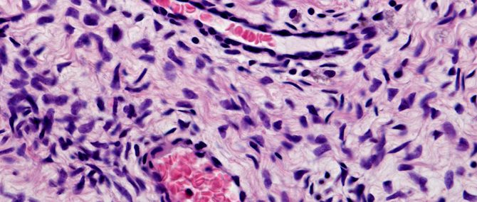 Imagen: Células madre en el ovario