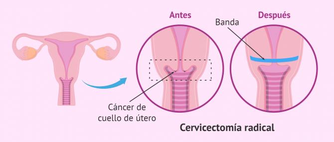 Imagen: Cervicectomía radical