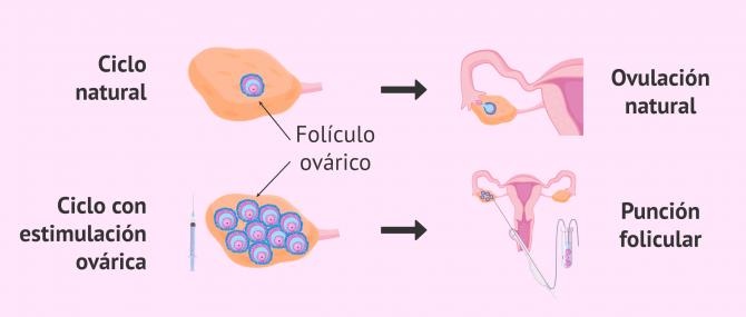Imagen: Ciclo natural y ciclo estimulado en la mujer