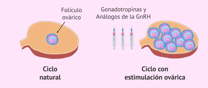 Imagen: Ciclo natural y ciclo con estimulación ovárica controlada