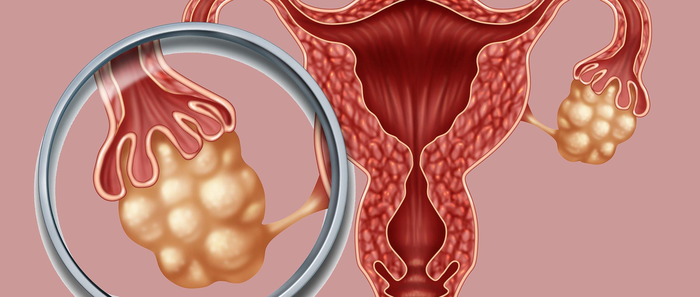 Ciclo ovárico estimulado para inseminación artificial
