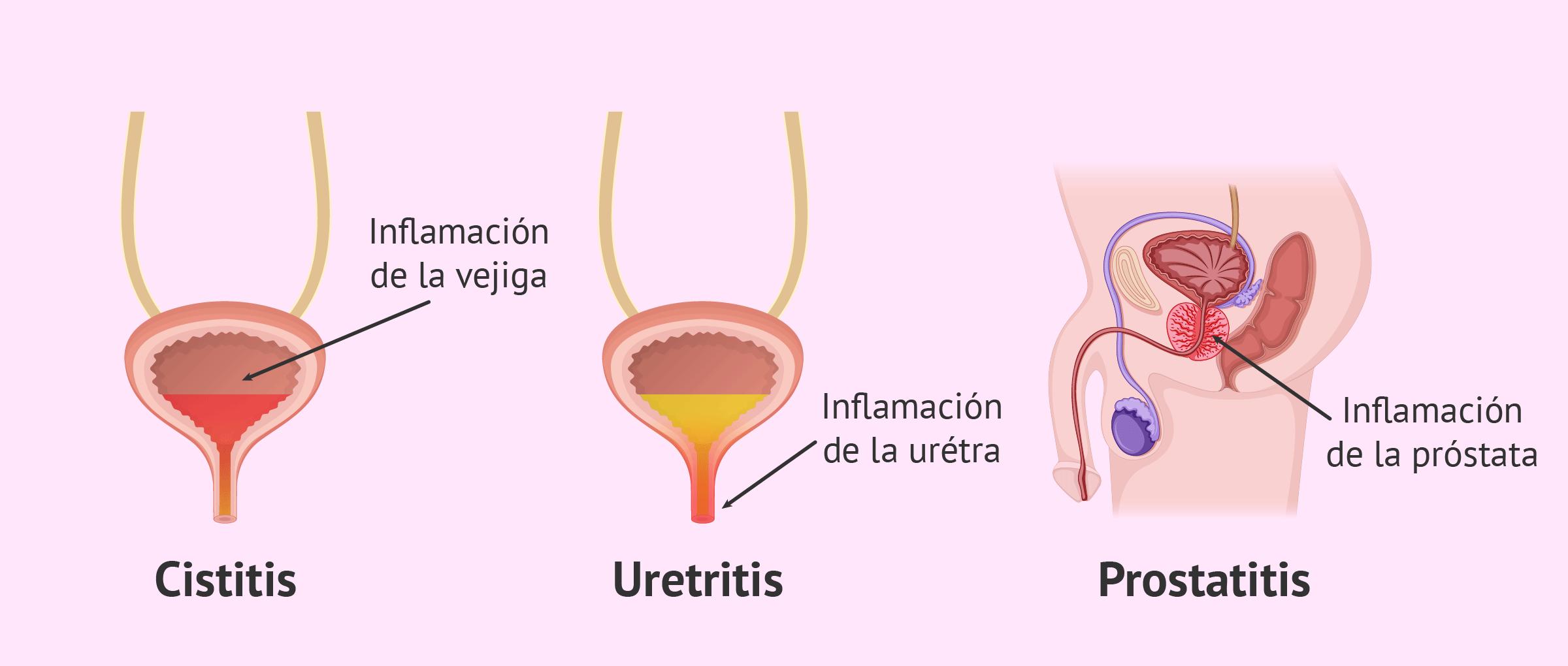 foro uretritis