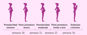 Prmaturidad del parto en función de la semana en la que ocurra