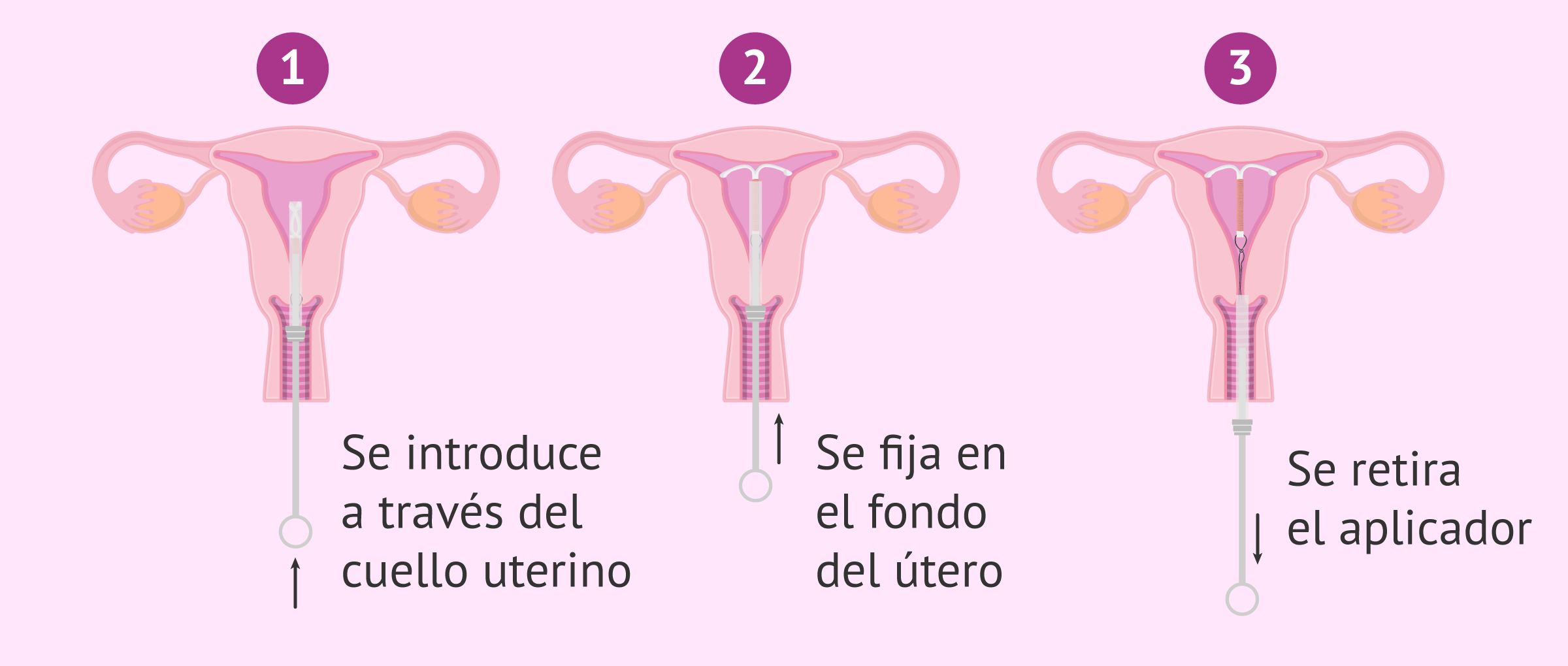 Colocación del DIU en el útero