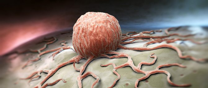 Imagen: Los anticonceptivos hormonales combinados previenen el cáncer