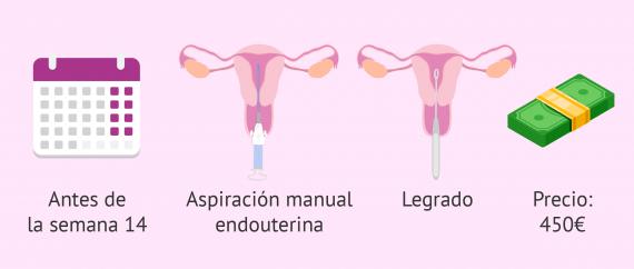 Imagen: ¿Cómo es el aborto quirúrgico?