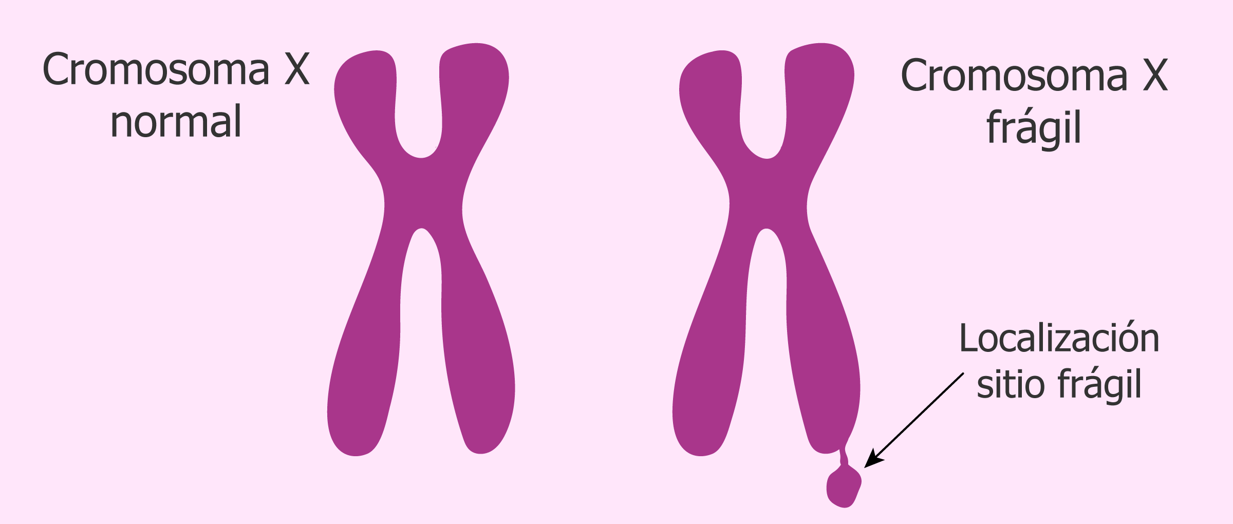 Sitio frágil causado por la mutación en FMR-1
