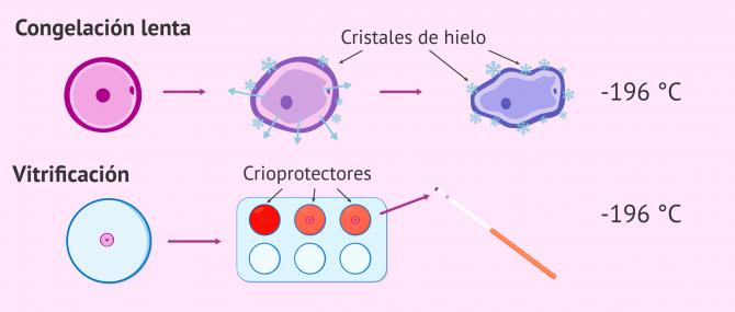 Imagen: Congelación lenta y vitrificación de óvulos