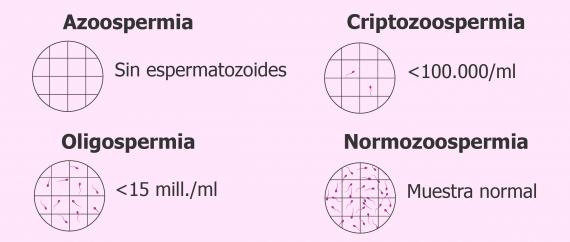Espermograma con azoospermia, criptozoospermia, oligospermia y normozoospermia