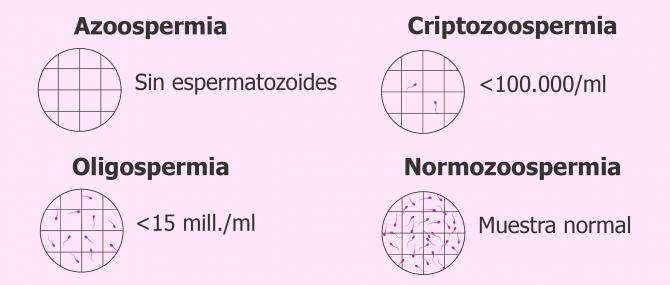 Imagen: Espermograma con azoospermia, criptozoospermia, oligospermia y normozoospermia