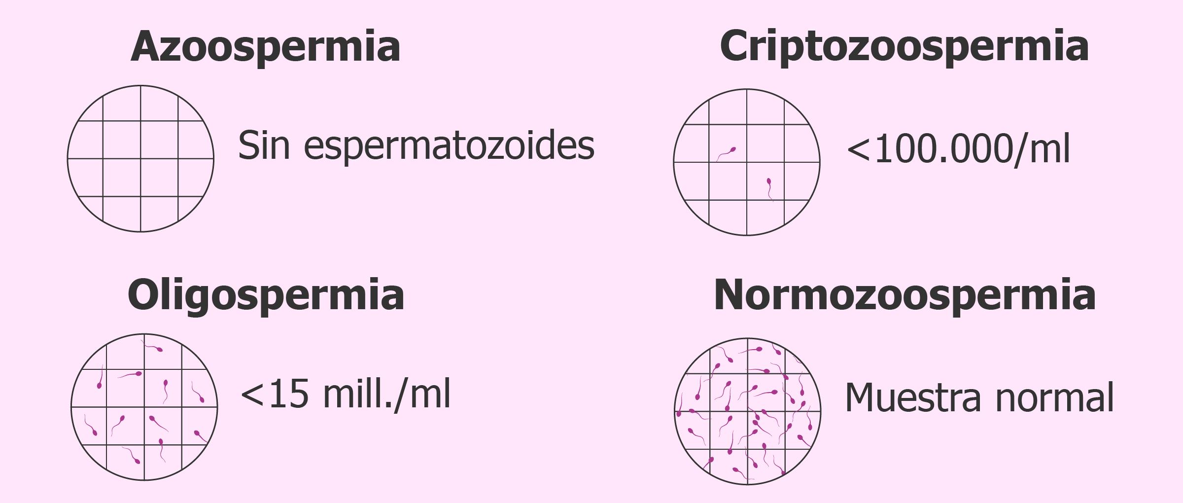 Concentración de espermatozoides en el seminograma