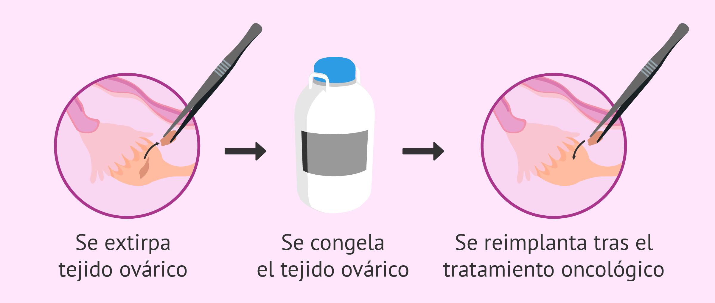 Congelación de tejido ovárico