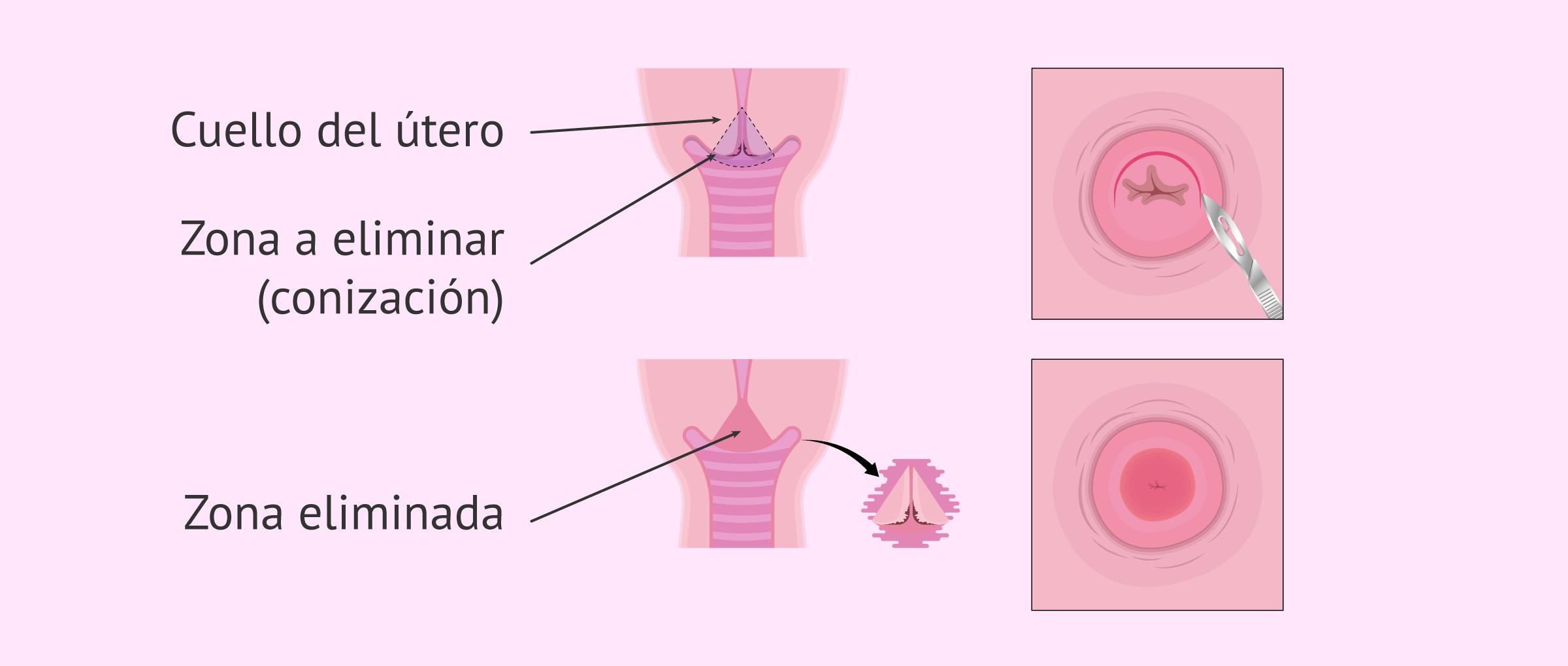 conizacion del cuello de utero