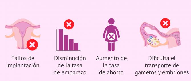 Imagen: Consecuencias de la adenomiosis en la fertilidad