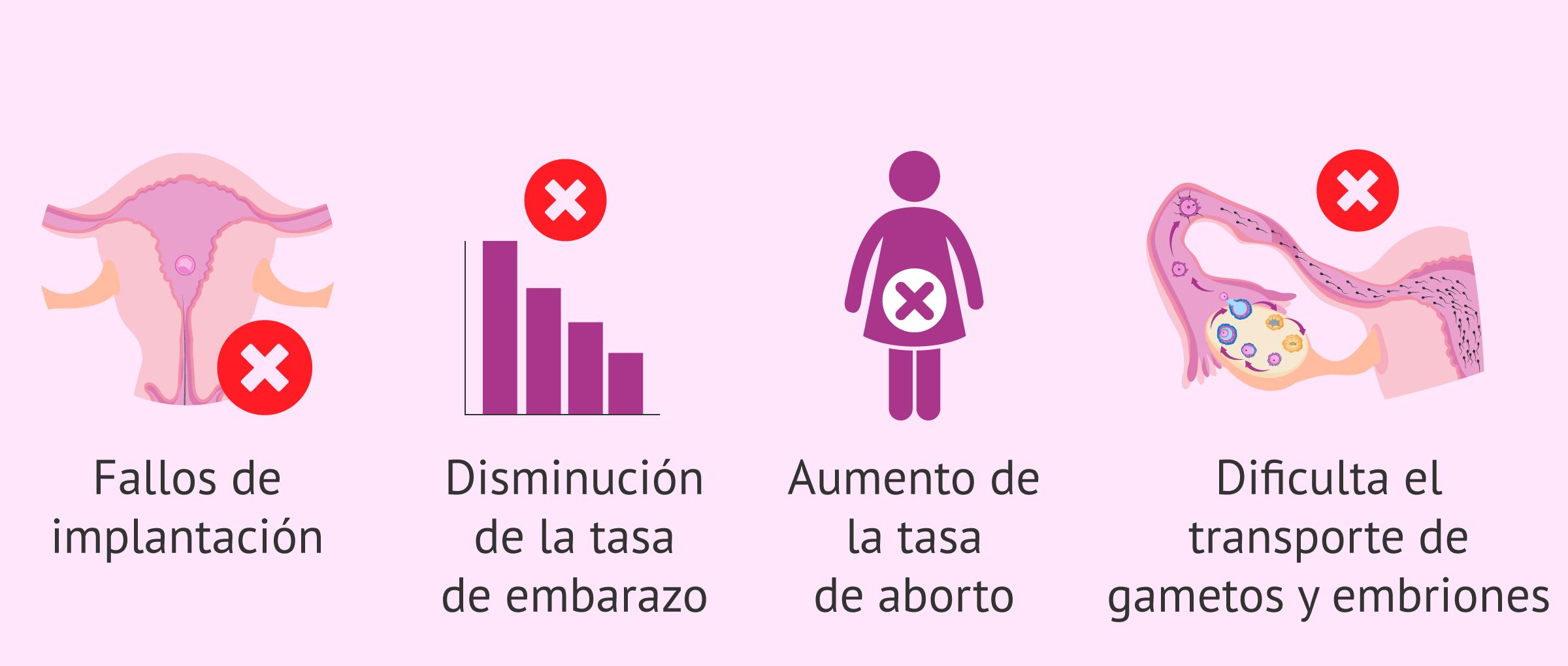 Consecuencias de la adenomiosis en la fertilidad