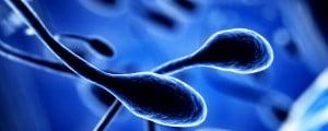Alteraciones en los espermatozoides