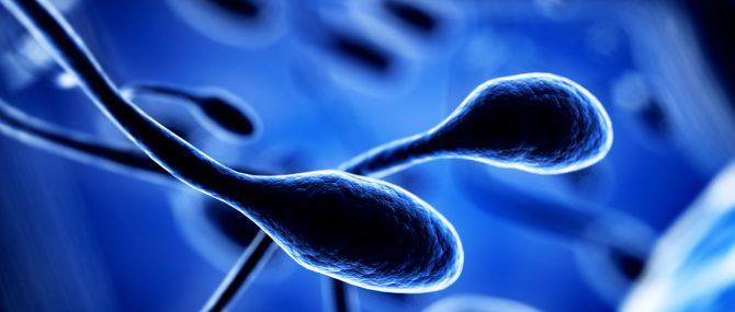 Imagen: Alteraciones en los espermatozoides