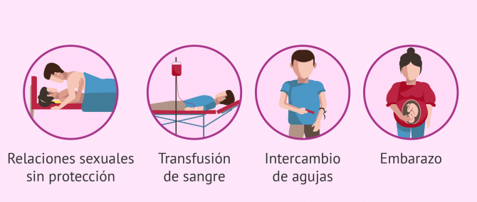 Enfermedades de transmisión sexual (ETS) en el hombre y la mujer