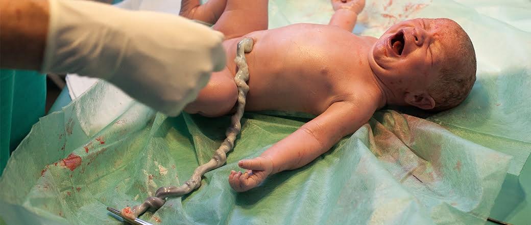 La sangre del cordón umbilical contiene las células madre de los recién nacidos