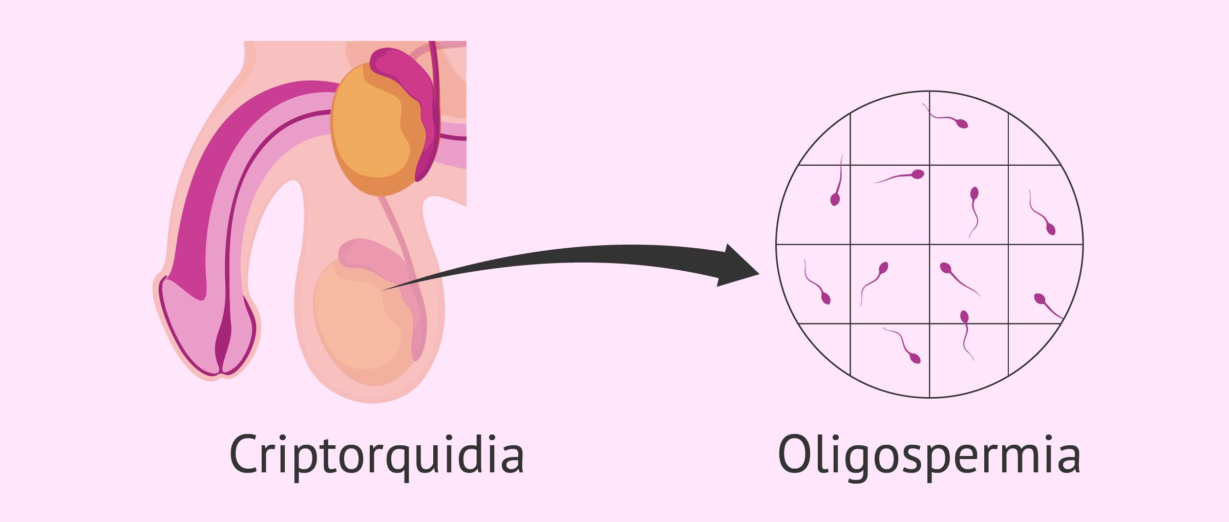 Oligospermia y criptorquidia