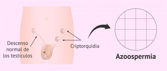 Imagen: Criptorquidia y azoospermia