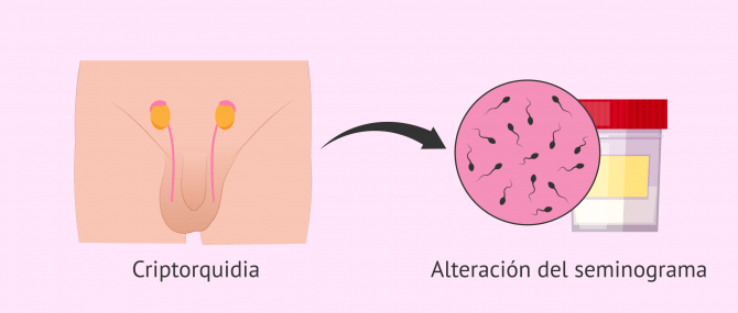 Imagen: ¿Influye la criptorquidia en la fertilidad masculina?