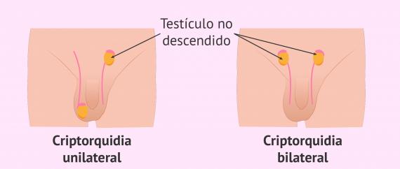 Criptorquidia y fertilidad