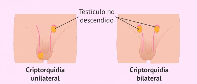 Imagen: Criptorquidia y fertilidad